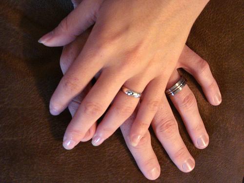紹介!妻の手湿疹を治した薬剤師おすすめの市販薬【肌荒れ・主婦湿疹】